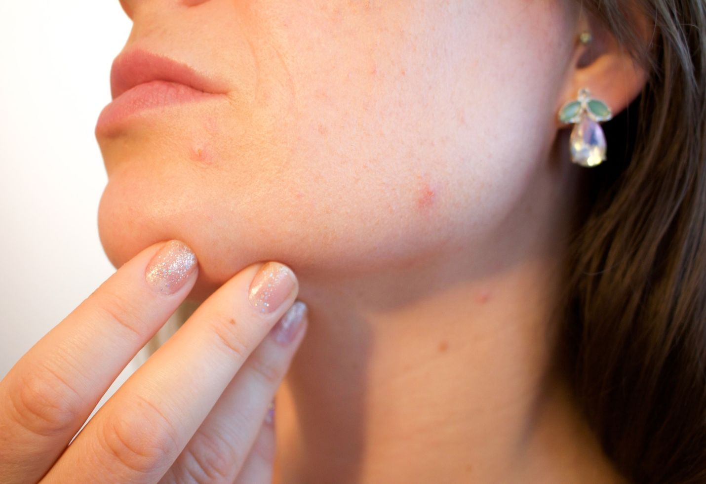 Dealing with Acne? Read this
